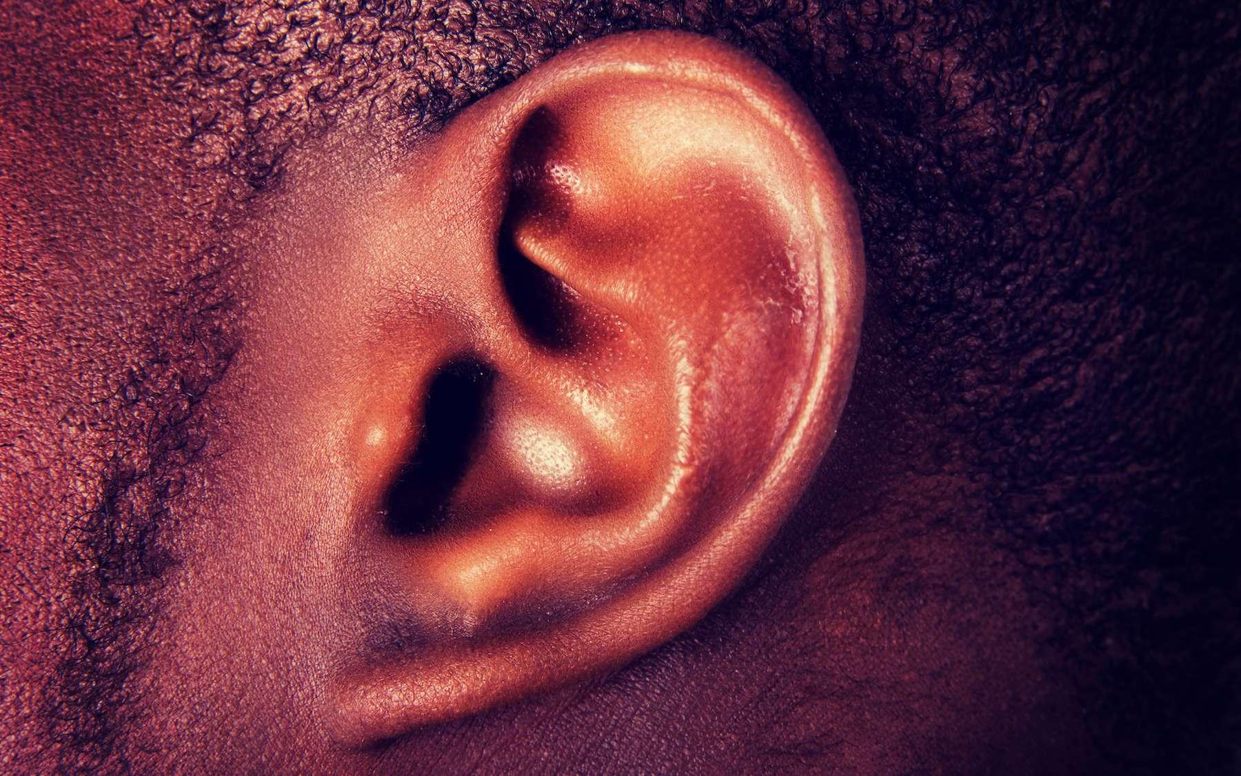 oreille chauffe